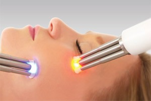 Synergy Microdermabrasion at Beauty Salon Bristol